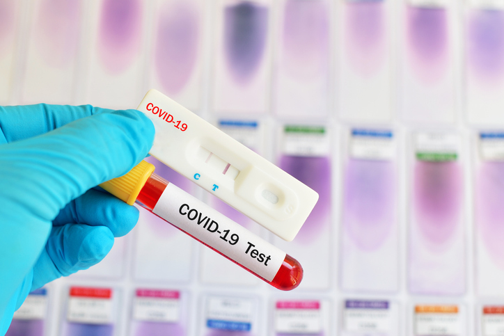 Best COVID-19 Diagnostic Tests Global WholeHealth Partners 877-568-4947